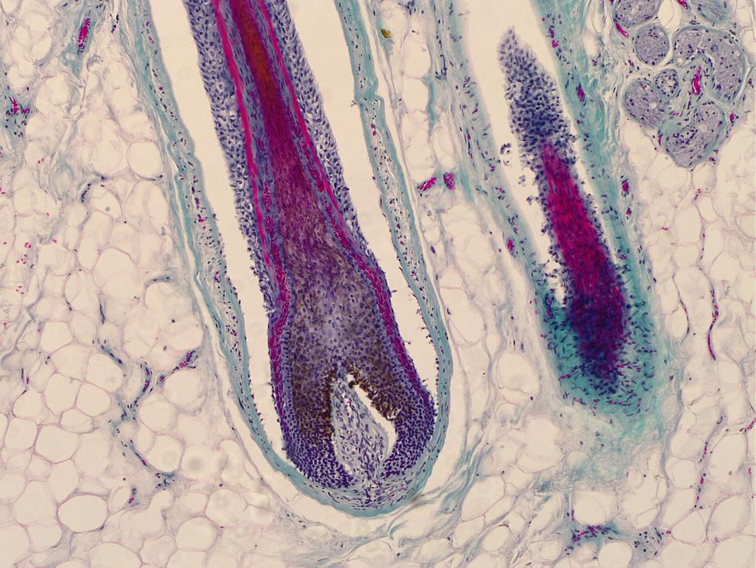 photo of a hair follicle