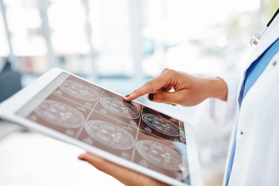 doctor looking at mri scans on tablet