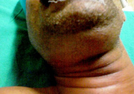 a close up of man neck with Ludwigs angina. Image credit: Anand H Kulkarni, Swarupa D Pai, Basant Bhattarai, Sumesh T Rao and M Ambareesha, 2008