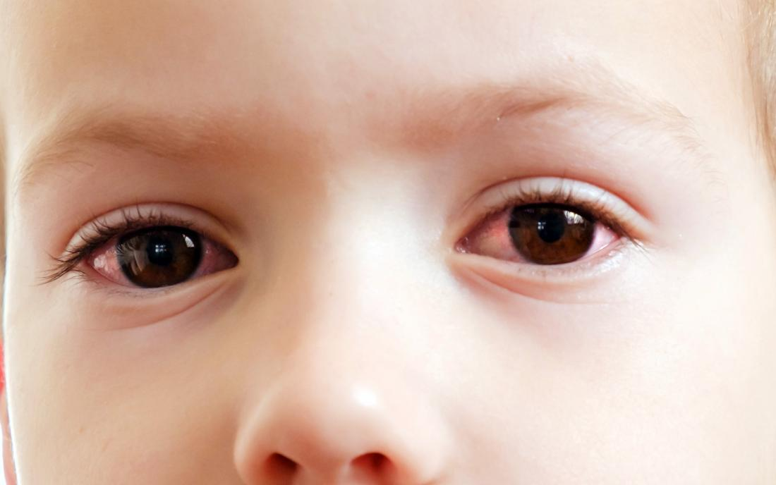 a toddler with pink eye