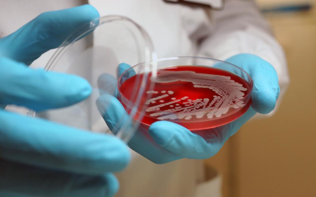 A woman holding a dish of a superbug in her hand.