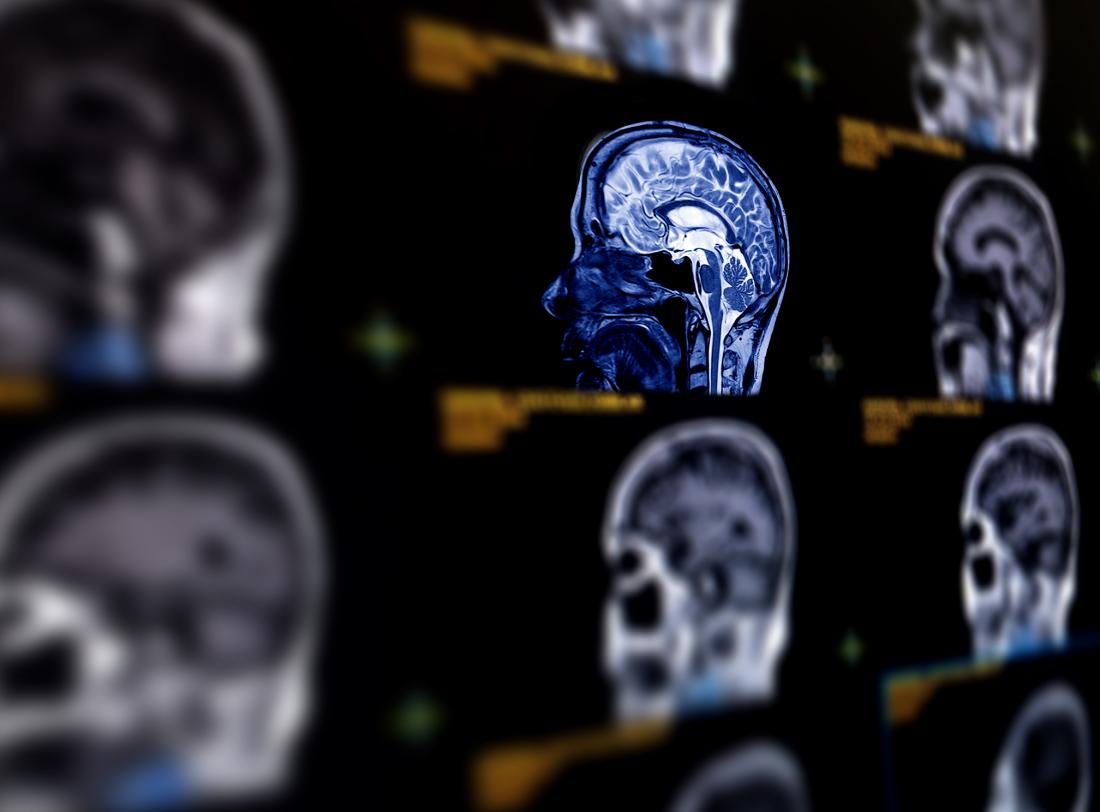 Inflammation drives tau damage in Alzheimer's