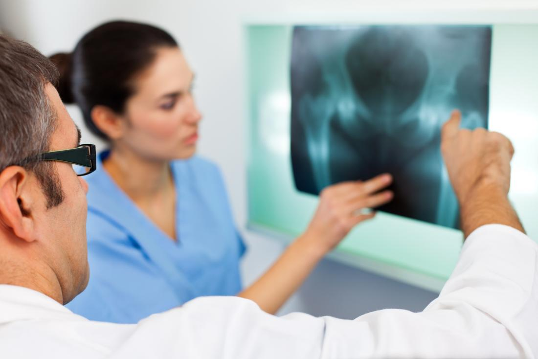 Osteoporosis: Could selenium reduce risk? -  doctors examining hip x ray