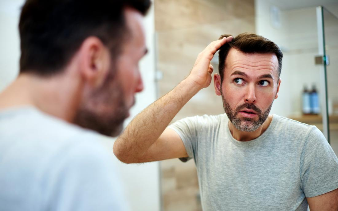 a man looking at his hair in the mirror and wondering How much hair loss is normal