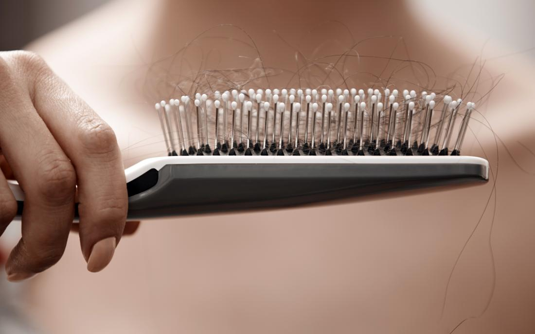 A women who needs treatment for Hair loss as he holds her hairbrush with lots of hair in it.