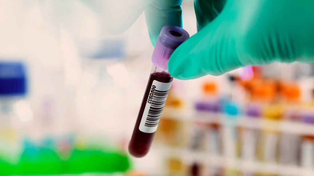 a blood vial that could be used to test for Hepatitis c false positive