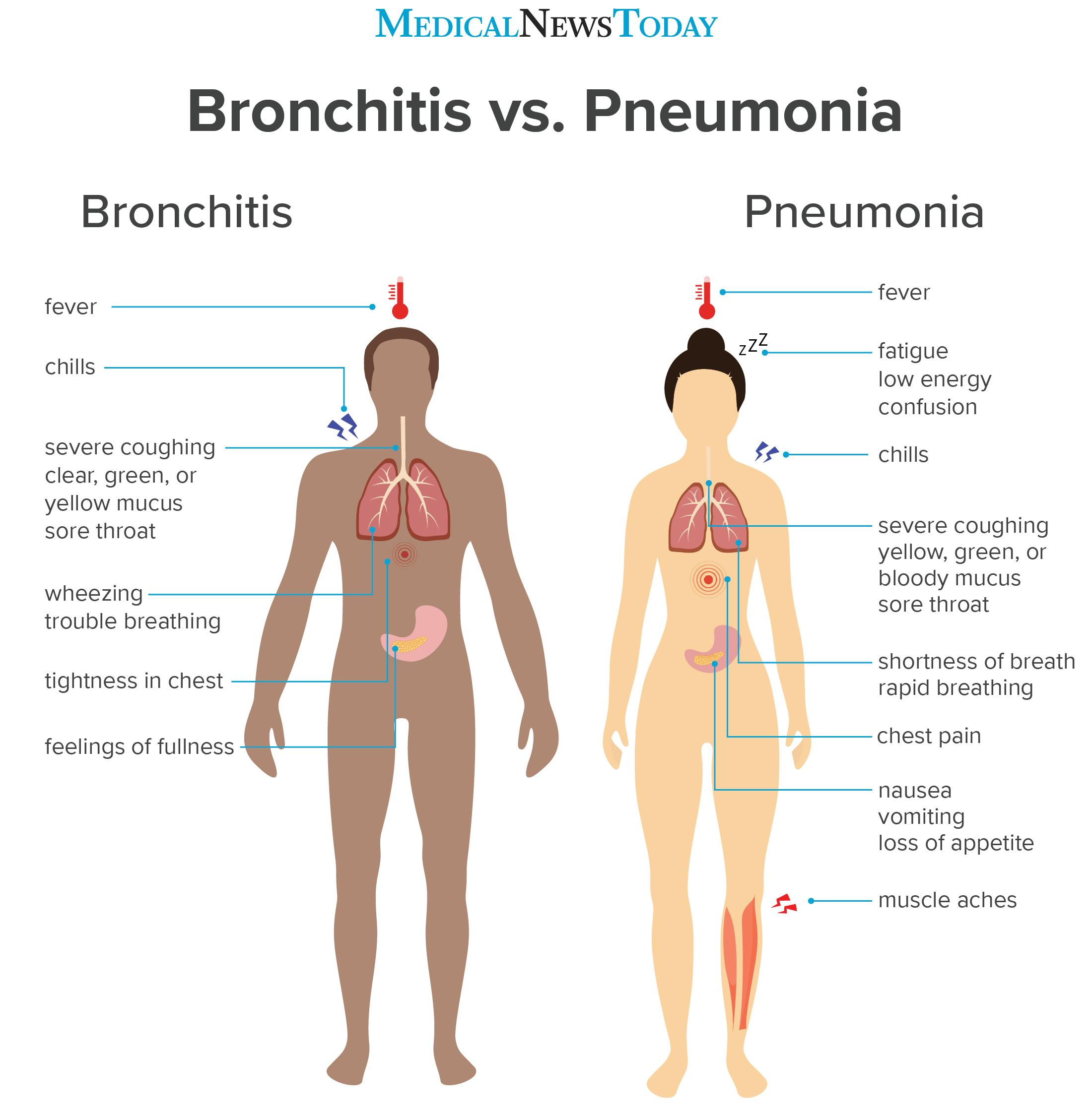 Bronchitis vs. pneumonia: How to tell