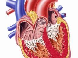 pericarditis symptoms diagnosis and