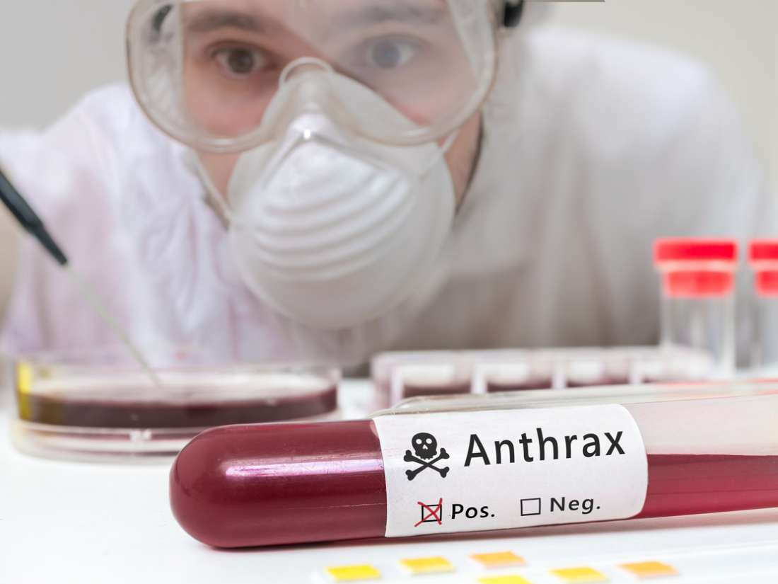 Anthrax: Causes treatments and risks