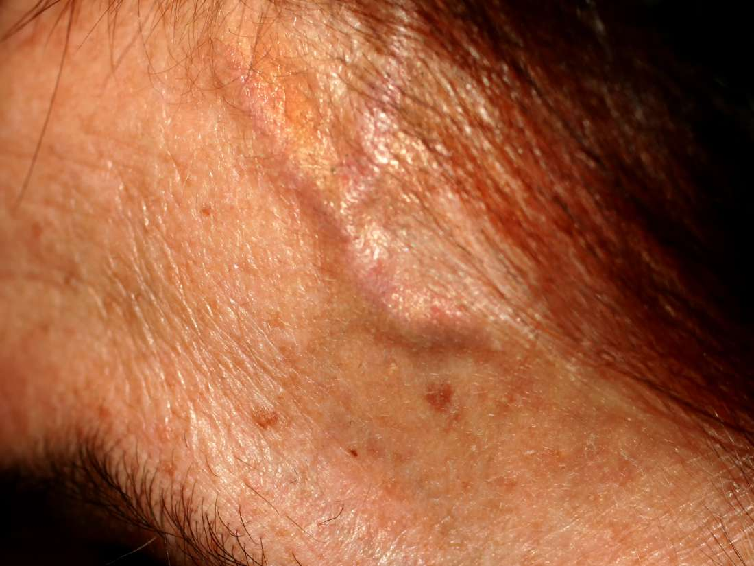 forehead veins causes of