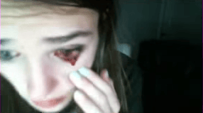 Gamer Girl Cries Blood Live On Twitch After Cat Attacks Her 220 Screen Shot 2017 04 17 at 12.23.52