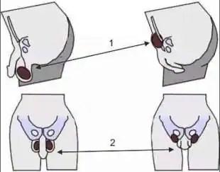 sapete cos'e' il tucking? è la pratica per nascondere pene e testicoli tra le gambe