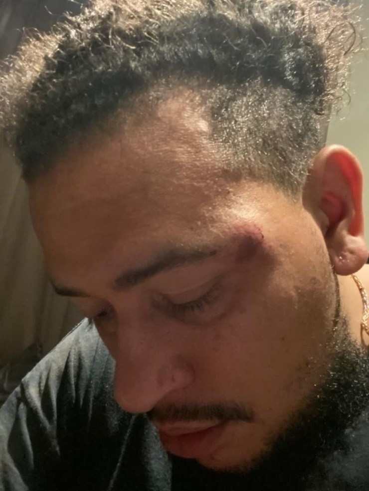 Rapper AKA after he was allegedly assaulted