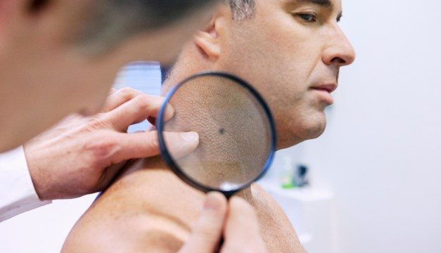 Skin Cancer Diagnosis and Treatment - Nancy Snyderman