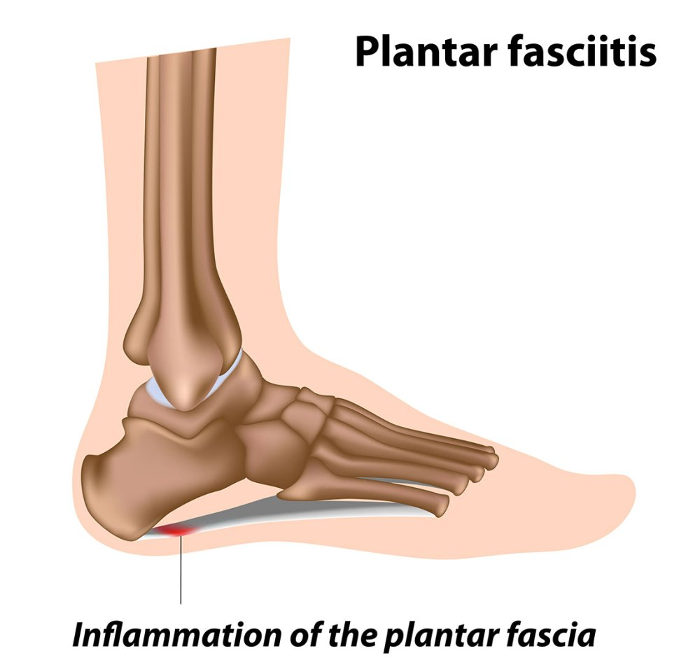 medium resolution of test your knowledge on plantar fasciitis and heel pain