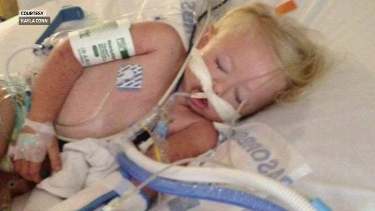 Conjoined twins separated at Texas Children's Hospital ...