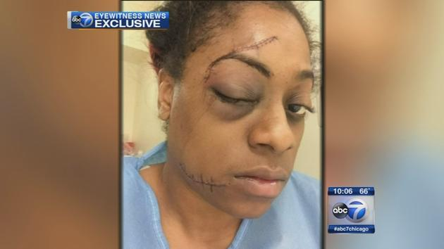 Victim claims attack in Chicago park was racially motivated