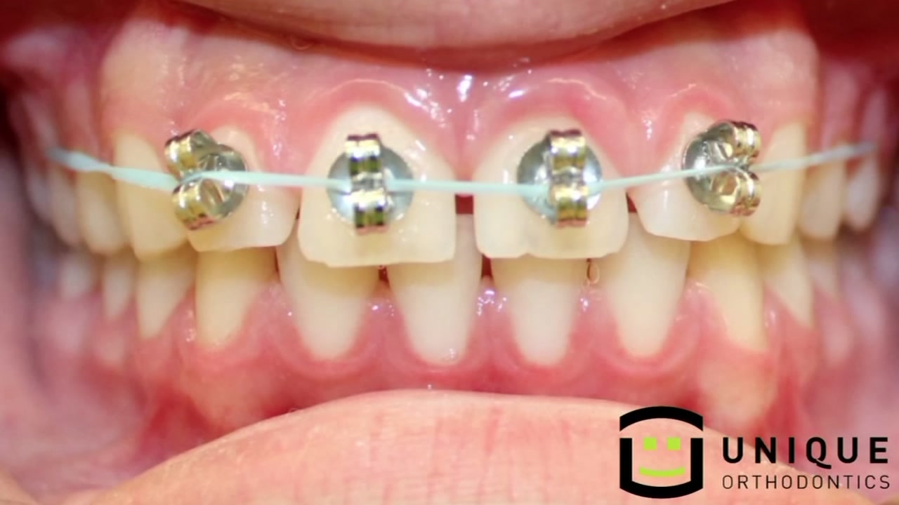 DIY braces are a thing -- but not a good one - ABC13 Houston