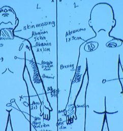 slain palmdale boy had bb lodged in groin skin missing from neck nurse testifies abc7chicago com [ 1280 x 720 Pixel ]