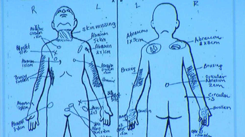 medium resolution of slain palmdale boy had bb lodged in groin skin missing from neck nurse testifies abc7chicago com