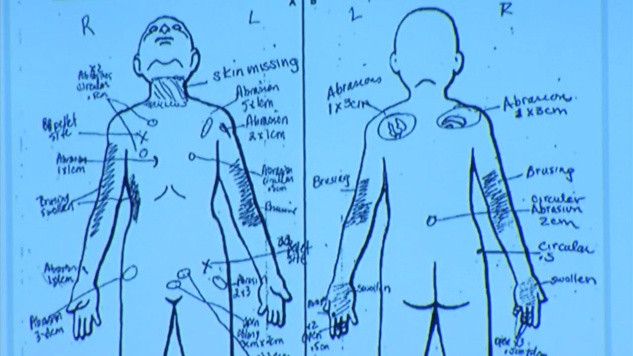 hight resolution of slain palmdale boy had bb lodged in groin skin missing from neck nurse testifies abc7chicago com