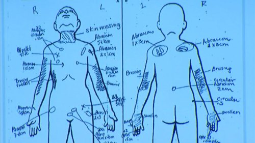 small resolution of slain palmdale boy had bb lodged in groin skin missing from neck nurse testifies abc7chicago com