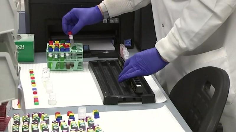Santa Clara County Health Department confirms its 4th case of ...