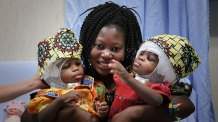 Conjoined Twin Sisters from Central African Republic Successfully Separated After Operation at Vatican Hospital