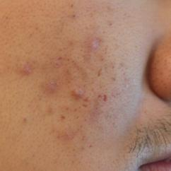 Hormonal Acne Diagram Ge Double Oven Wiring Mild Cystic Pictures To Pin On Pinterest Thepinsta