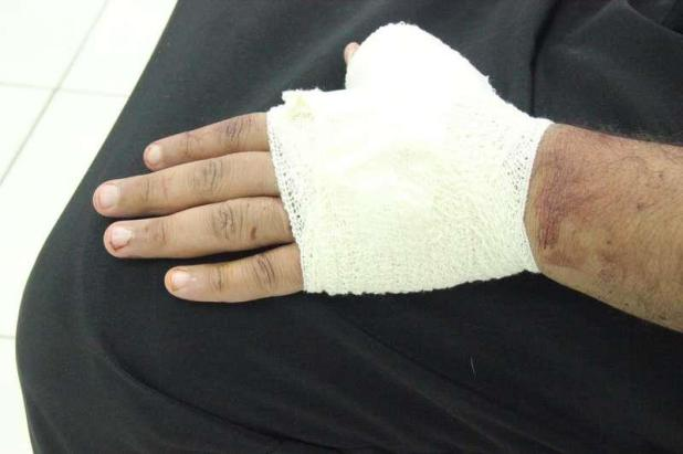 مدينة الملك سعود الطبية تستقبل 42 مصابا بجروح قطعية بسبب  الأضاحي – صور