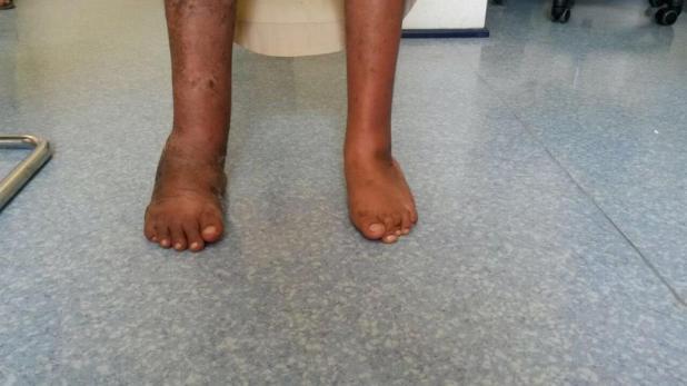 شاب يمشي على قدميه لأول مرة: