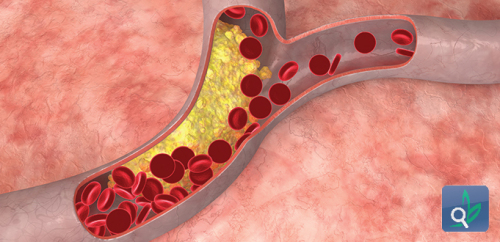طريقة جديدة لازالة الكوليسترول من الدم