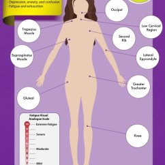18 Tender Points Of Fibromyalgia Diagram 1952 Ford 8n Tractor Wiring Why Are Important For Diagnosis Arizona Infographic