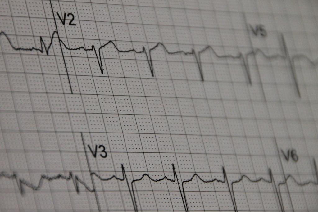 Heart sounds quizlet