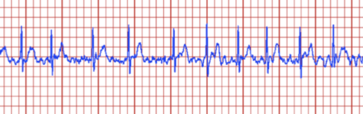 Image of a cardiac trace showing irregular activity.
