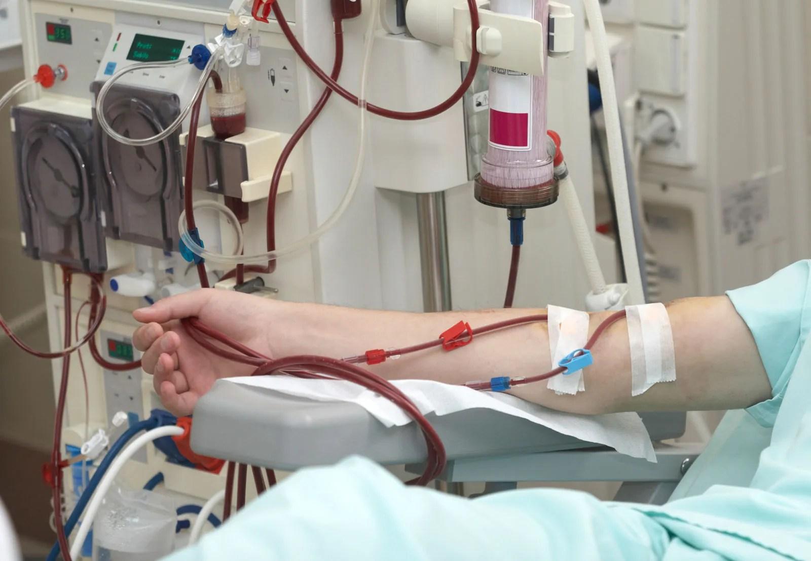 Dialysis | hemodialysis | Britannica