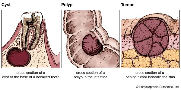 cyst polyp and tumor - Students | Britannica Kids ...