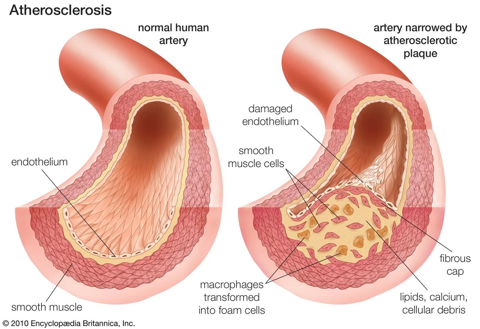 Atherosclerosis   pathology   Britannica