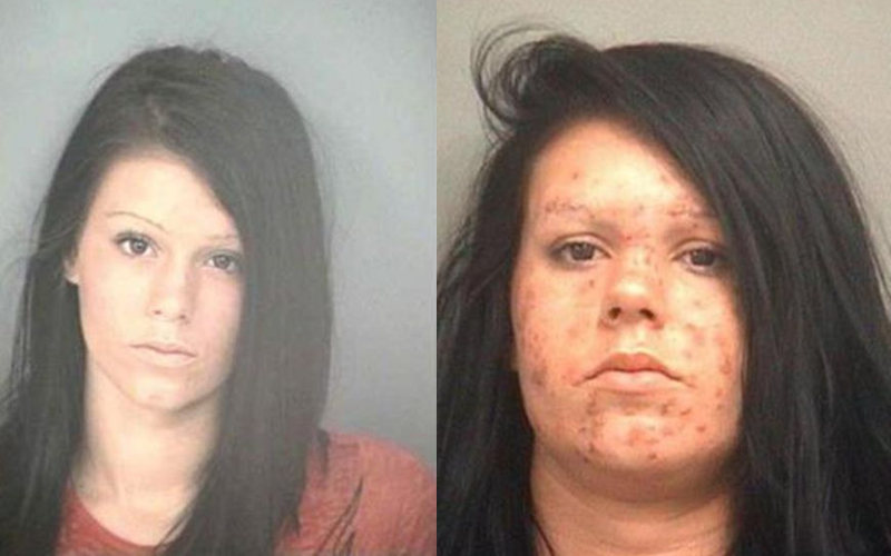 You Will Never Want To Do Drugs After Seeing These Faces Of Addiction