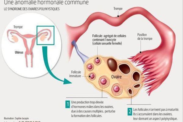 Syndrome_Féminin_Polykystique_Ovaire_