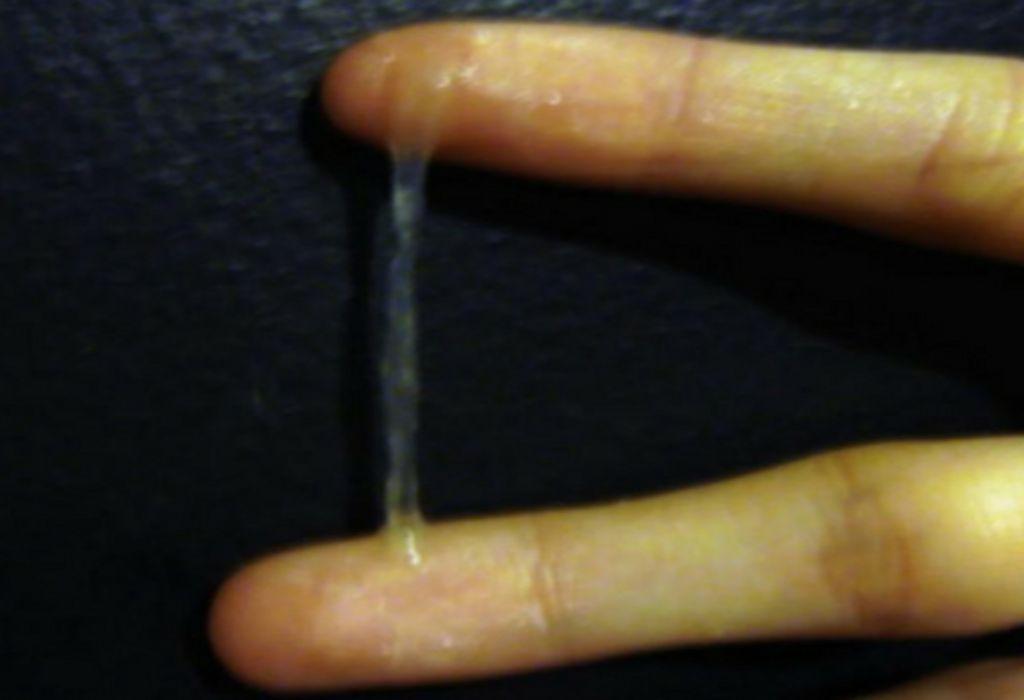 Egg White Cervical Mucus