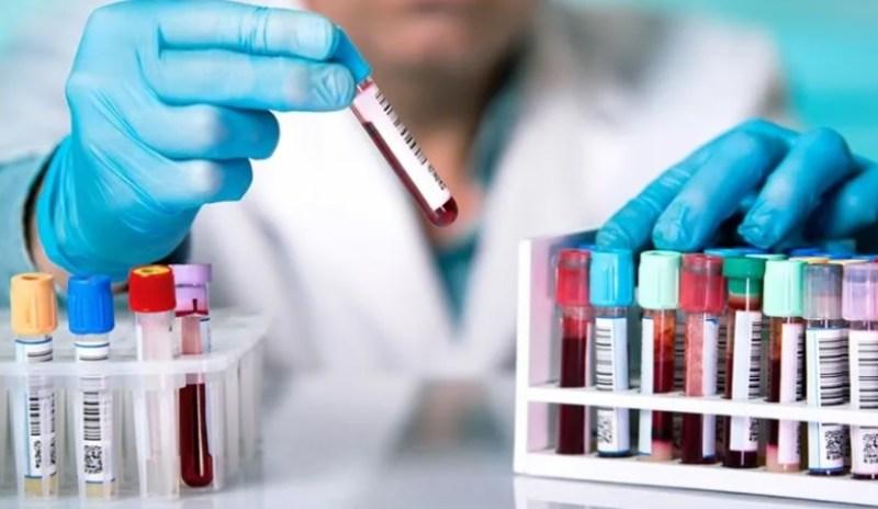 Un estudio revela que el coronavirus altera la materia gris