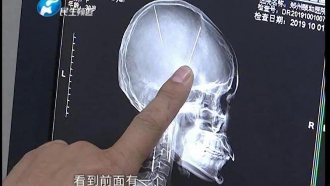 Se hizo una tomografía por un accidente y descubrió que tenía dos agujas en el cerebro