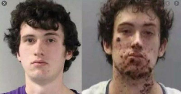 Un hombre perdió su mano al intentar crear explosivos para atacar porristas