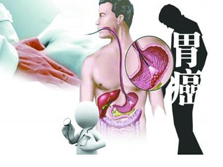 胃癌年輕化。6個早期信號不可忽視 EZP9 生活網