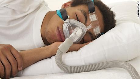 Die Verwendung einer CPAP-Maschine kann für einige das Sexualleben verbessern, so die Studie