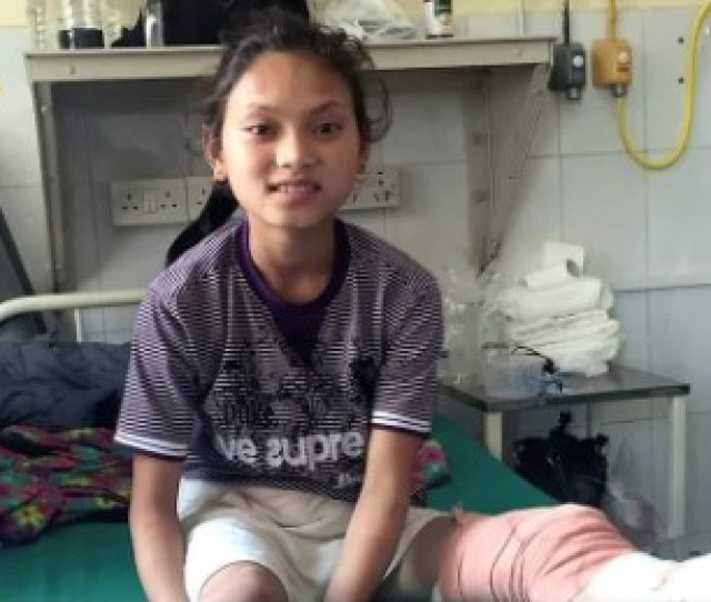 Hope For One Little Girl In Nepal Who Lost Her Leg