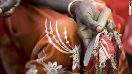 Nigerian Facebook user posts graphic photos of female circumcision
