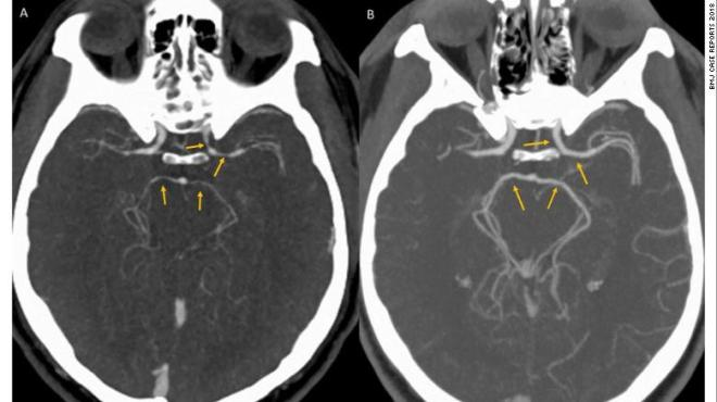 CT angiography shows the constriction of blood vessels in the brain shortly after the onset of symptoms, left, and upon resolution five weeks later.