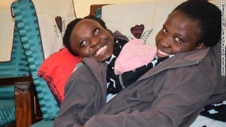 Tanzanian conjoined twins die at age 21